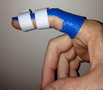 Index Splint